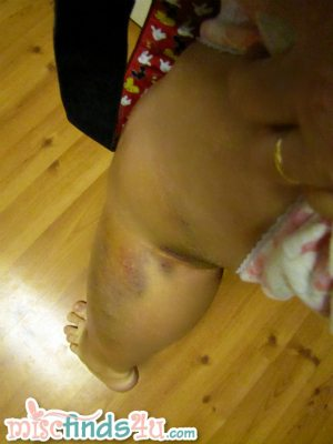 Day 7 update - bruises everywhere - they're black in person and really ugly :)