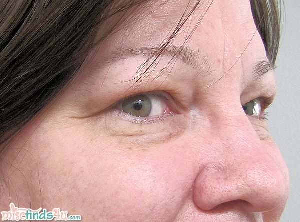 Before using the Palovia laser but after 30-days of Meaningful Beauty