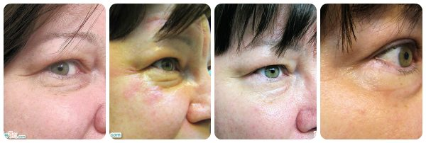 My before, during and after Palovia laser treatment photos