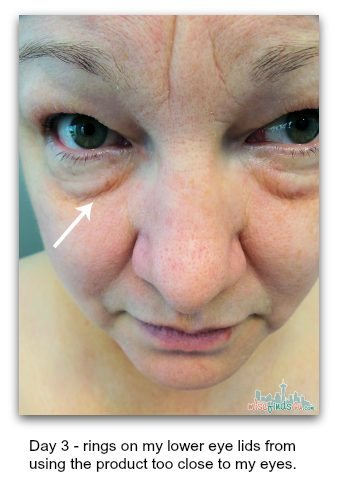 BAXT Cosmedical Acne Kit Level I  issues - ad