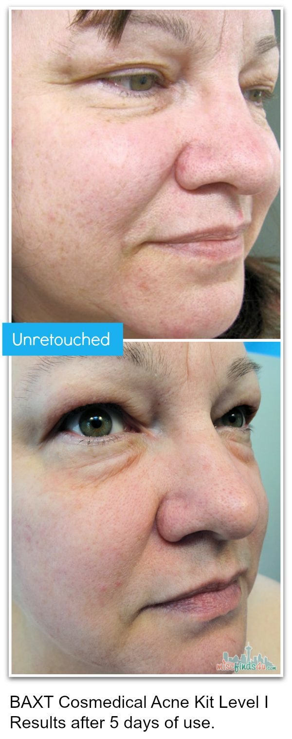 Before and After BAXT Cosmedical Acne Treatment Photos - unretouched Ad