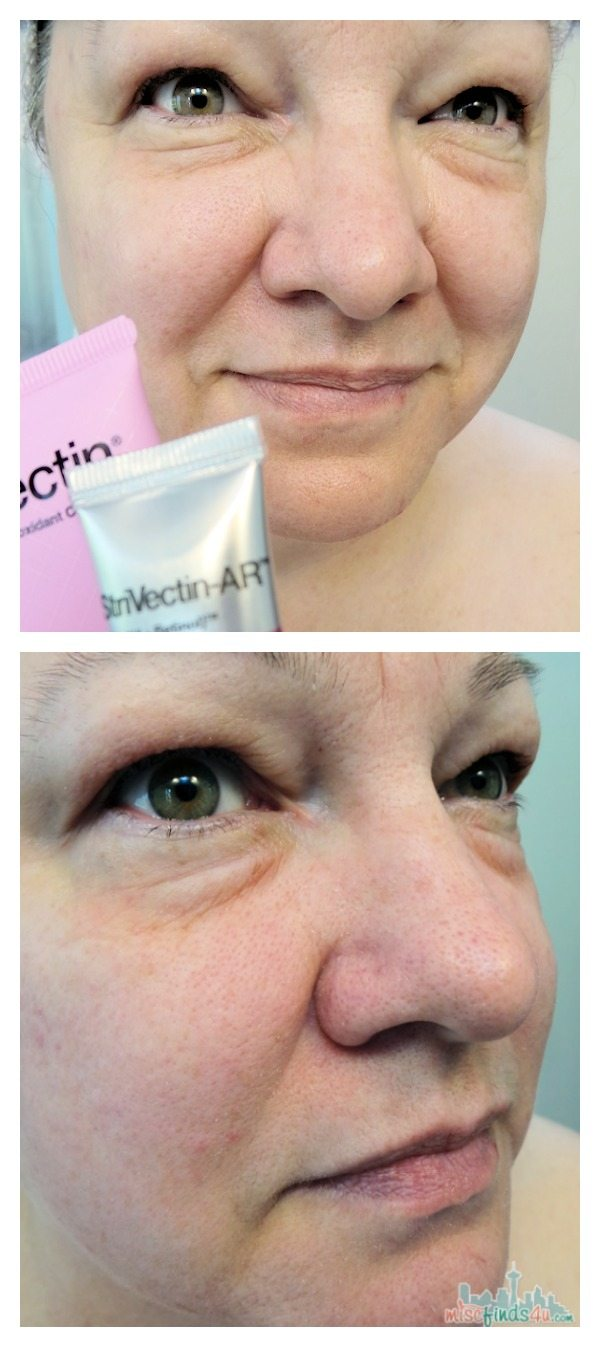 StriVectin Skincare Products Before After Photos