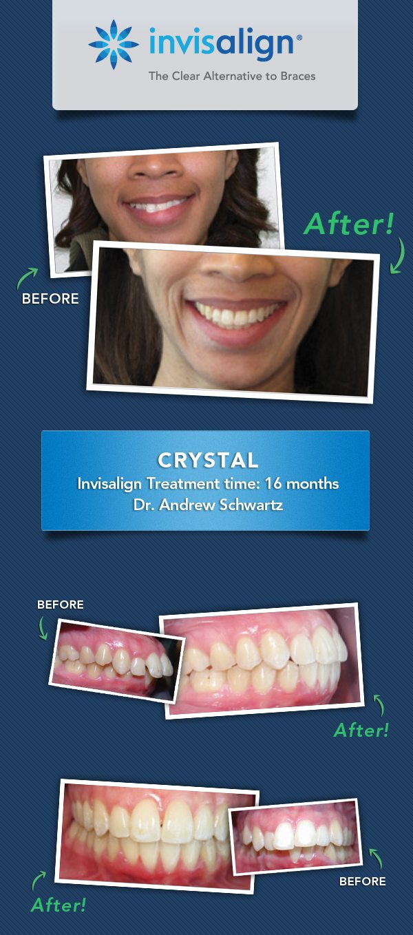 "Invisalign results: Crystal ""Straight Talk"" event Invisalign Teen: Straight Talk For Generation Z #InvisalignTalk @Invisalign sponsored"