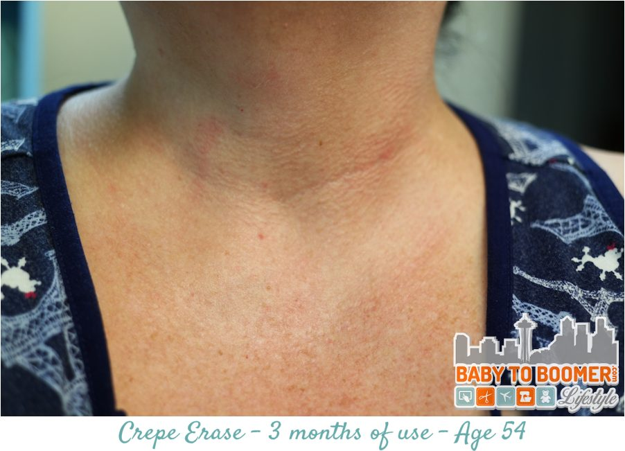 Crepe Erase 3 month Results - neck