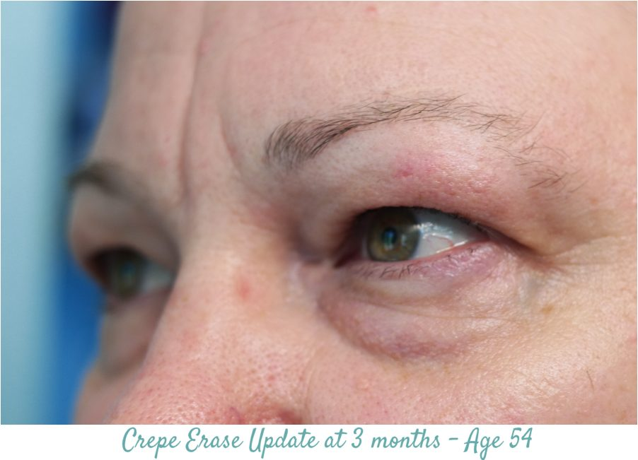 Crepe Erase 3 moths Results - left eye