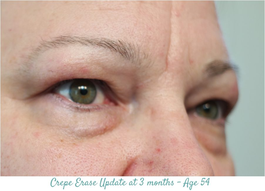Crepe Erase 3 moths Results - right eye
